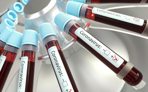 Coronavirus, nessun nuovo decesso in Piemonte. Altri 26 pazienti guariti